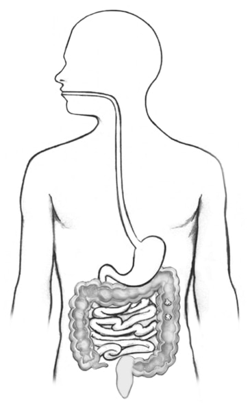 Drawing of the digestive tract within outline of the human body that includes large intestine, colon (shaded), rectum, and anus.