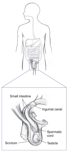 Drawing of the digestive tract within the outline of a male body with an inset showing an indirect inguinal hernia in a male. Labels point to small intestine, inguinal canal, spermatic cord, scrotum and testicle.
