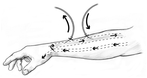 Drawing of a forearm with an AV fistula. Needles and tubes are inserted into the AV fistula. Arrows show direction of blood flow.