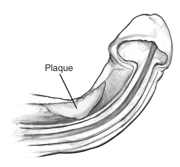 A cross section of a curved penis during an erection, label pointing to the location of plaque.