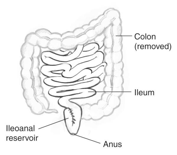 Drawing of the removed colon, labels pointing to the colon (removed), ileum, ileoanal reservoir, and anus.