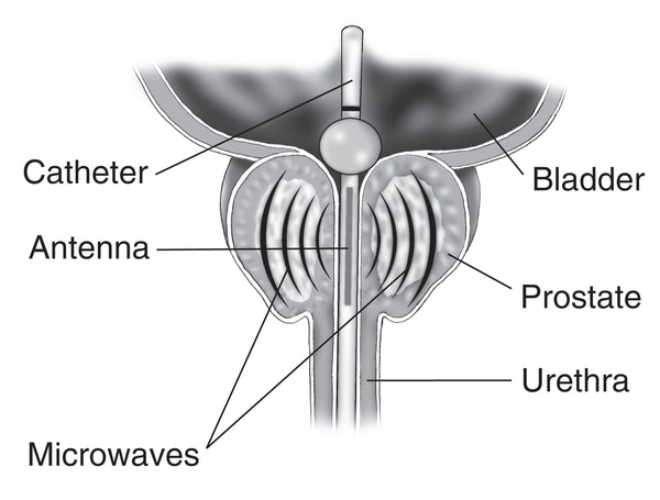 Drawing of a cross-section of the prostate, bladder, and urethra. Labels pointing to a transurethral microwave thermotherapy catheter extends from the urethra into the bladder and an antenna sends microwaves through the catheter to the prostate.