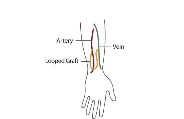 AV graft in a forearm.
