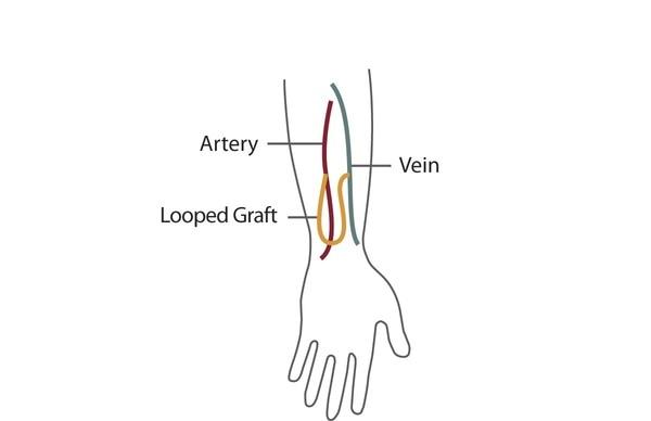 AV graft in a forearm.