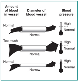 Picture of blood flowing through a normal blood vessel, blood flowing through a narrowed blood vessel, and too much blood flowing through a normal blood vessel.