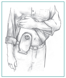Drawing of a man holding up his shirt to show a urostomy pouch attached to his abdomen.